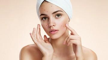 Acne: uma doença que atinge mulheres dos 8 aos 80