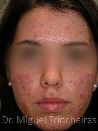 Acne: só um dermatologista o acordará deste pesadelo.