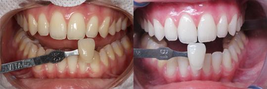 O branqueamento dentário danifica os dentes: verdade ou mito?