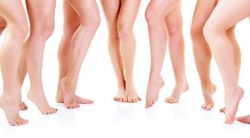 Varizes: evite a sensação de pernas pesadas e cansadas